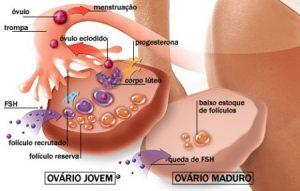 sintomas-da-menopáusa-e-tratamento